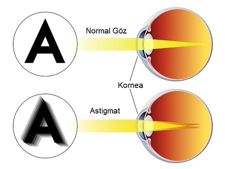 Astigmat Gözlük Kullanılmazsa Ne Olur