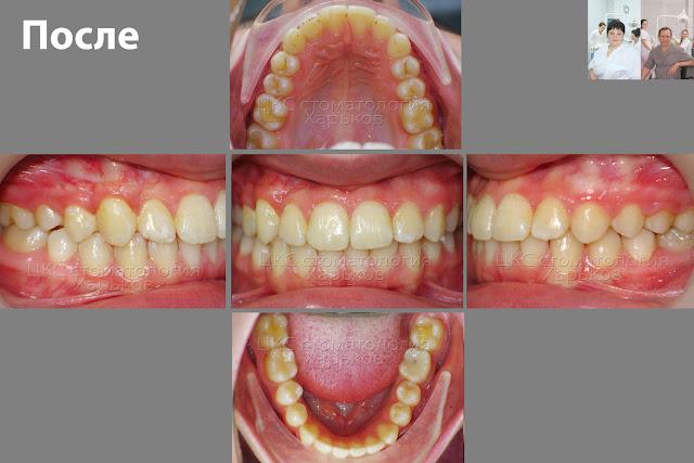 фото зубов в финале лечения