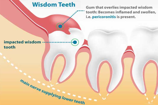 Problem Wisdom Teeth and How to Overcome it