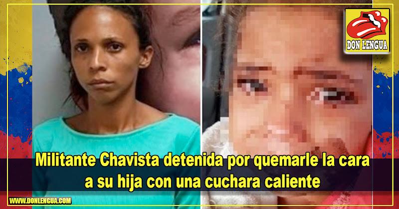 Militante Chavista detenida por quemarle la cara a su hija con una cuchara caliente