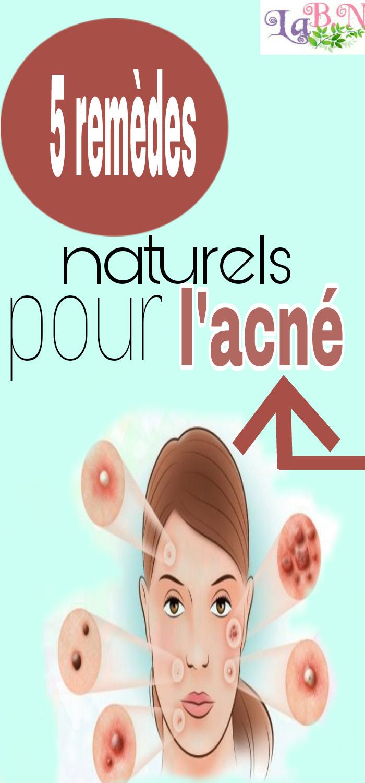 5 remèdes naturels pour l'acné