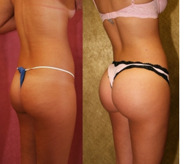Brazillian Butt Implants 15