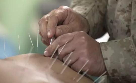 Kenali Pengobatan Akupuntur dan Manfaatnya