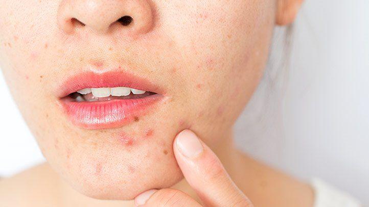 Acne Scar Problem