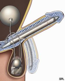 líquido después de la erección