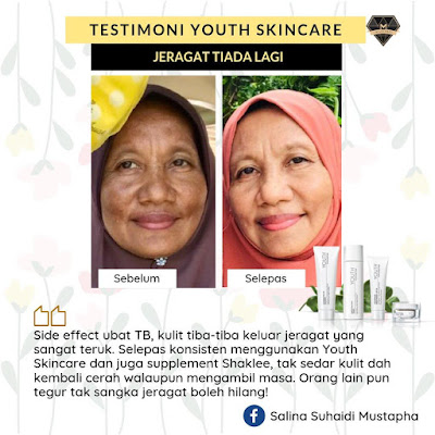 Testimoni-Youth-Skincare-Jeragat-Hilang