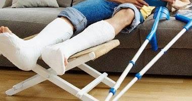 علاج كسور العظام بالاعشاب والطب البديل .
