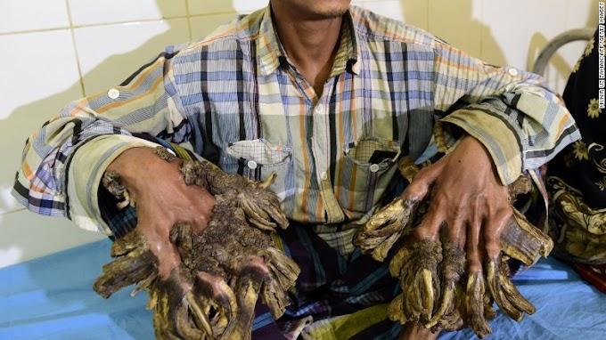 Bangladesh's 'Tree man' has his hands back