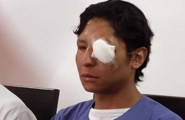 La Paz: Universitario perdió un ojo por la represión policial