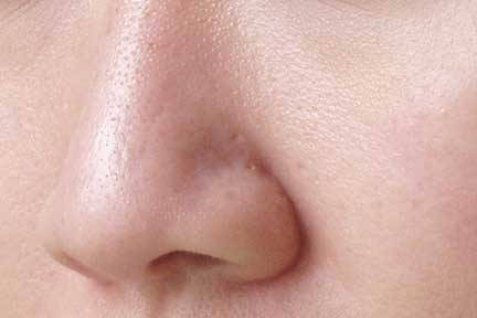 large pores on nose - photo #23