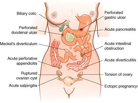 Kelainan abdomen akut, nyeri, kolik bilier, ulkus duodenal perforasi, divertikulum meckel, apendisitis akut perforativa, kista ovarii ruptur, salpingitis akut, ulkus gaster perforativa, pankreatitis akut,, obstruksi intestinal akut, divertikulitis akut, torsi ovarii, kehamilan ektopik terganggu (KET)