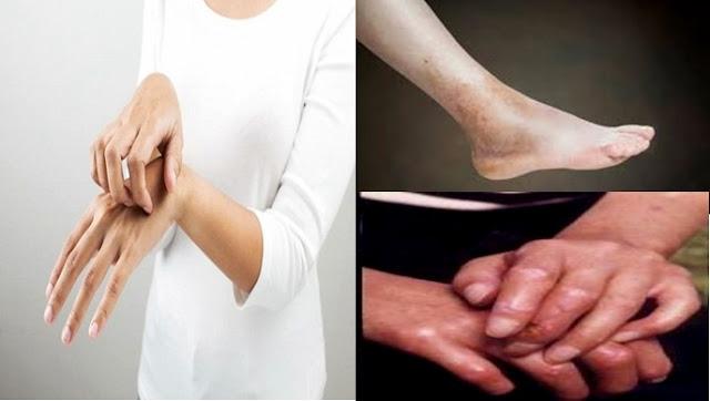 Cara cepat menyembuhkan scleroderma