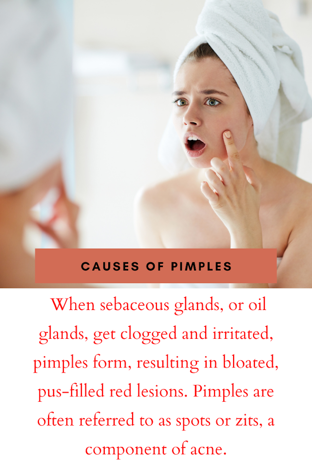 What Causes Pimples | How to Treat and Prevent It | What to Do