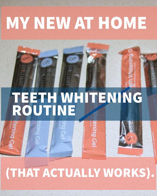 teeth whitening kit that actually works.
