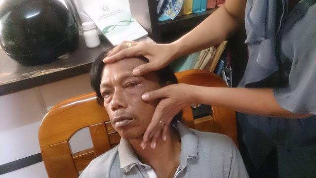 TKI Ini Menjadi Korban Kekerasan Polis Malaysia, Pemerintah Diminta Tindak Tegas Oknum Tersebut