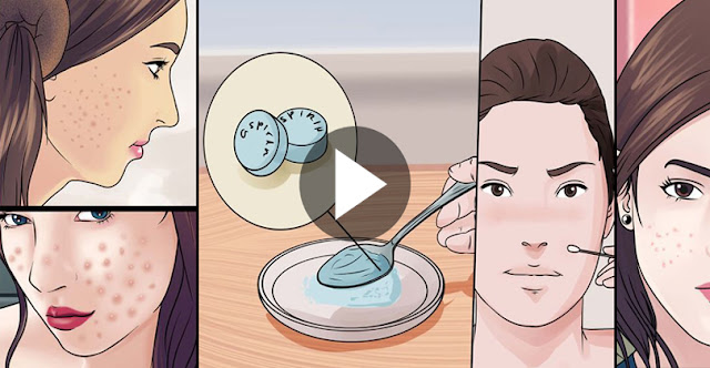How To Covered Your Acne Within 5 Minutes