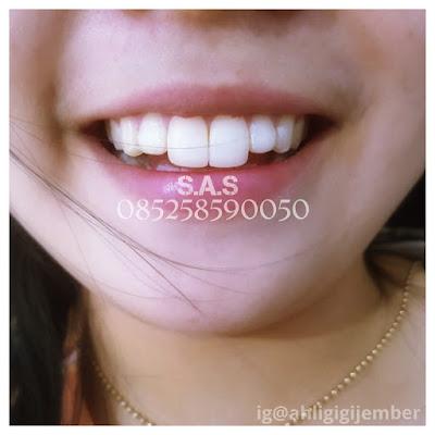 Bunny teeth gigi kelinci gigi marmud fashions gigi kelinci jember pati gigi kelinci cantik beautifull