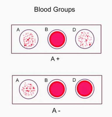 Blood-group-a-result