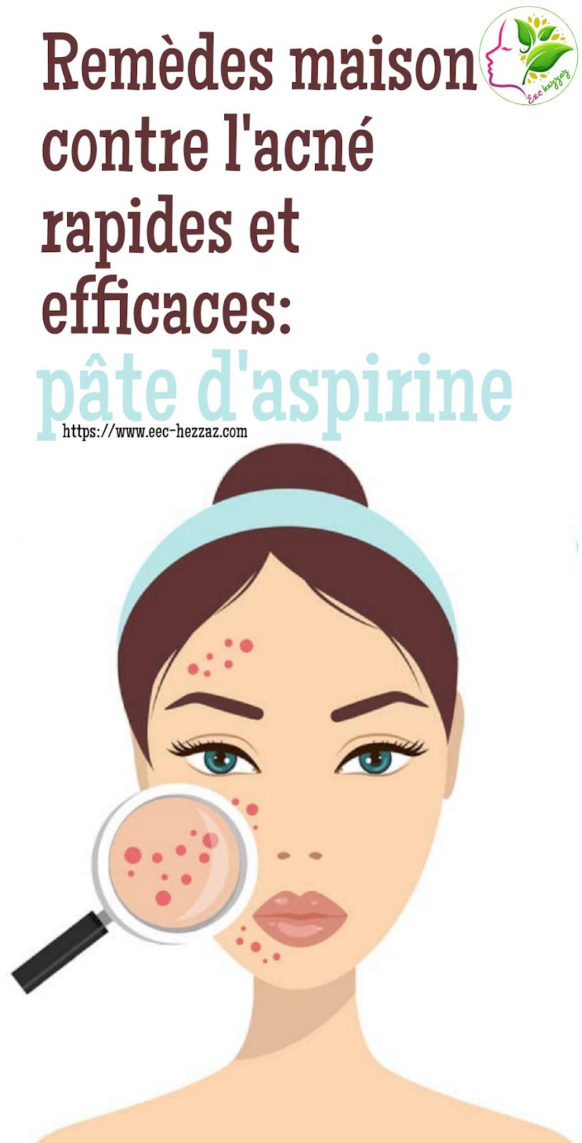 Remèdes maison contre l'acné rapides et efficaces: pâte d'aspirine