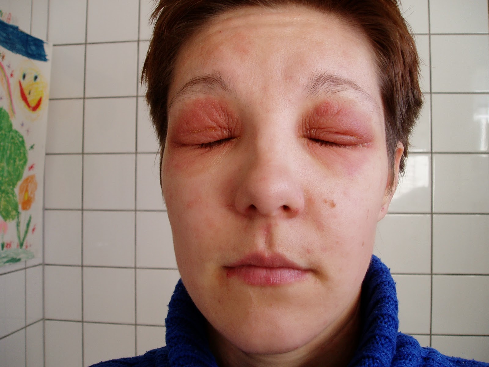 ögon eksem behandling