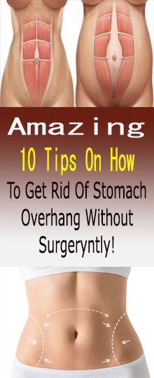 10 Tips On How To Get Rid Of Stomach Overhang Without Surgery #healthandfitness
