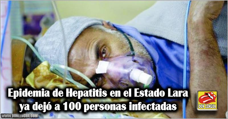 Epidemia de Hepatitis en el Estado Lara ya tiene a 100 personas infectadas