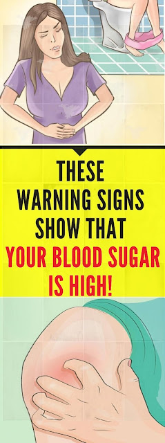 14 Signs a That Your Blood Sugar Is Very High!