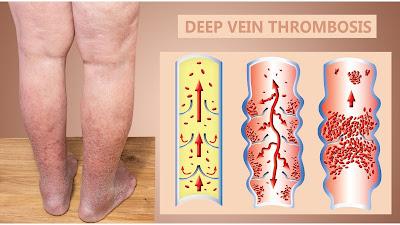 Deep Vein Thrombosis : nyeri kaki, pembengkakan. kemerahan pada kaki, dan individu memiliki faktor risiko seperti imobilitas atau hiperkoagulabilitas.
