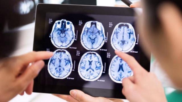 Επιστημονική θεωρία υποστηρίζει ότι ο εγκέφαλος των νεκρών συνεχίζει να λειτουργεί μετά θάνατον