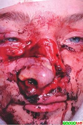 Open Nasal Fracture.