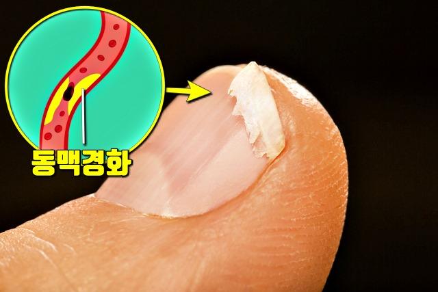 혈액순환이 안되면 나타나는 증상, 손톱 부러짐, 건강, 팁줌 매일꿀정보