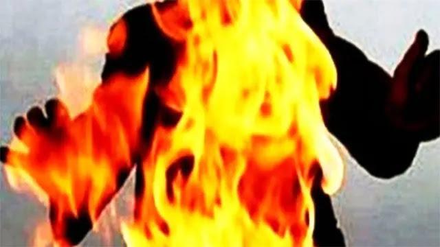 الدار البيضاء...زوج في حالة سكر بضرم النار في زوجته