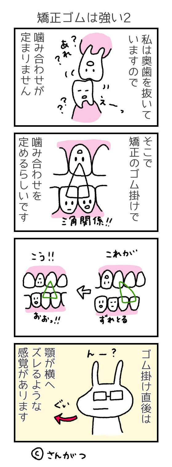 歯科矯正の漫画 29 矯正のゴムは強い編