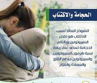تعرف على العلاقة بين الحجامة وعلاج الاكتئاب