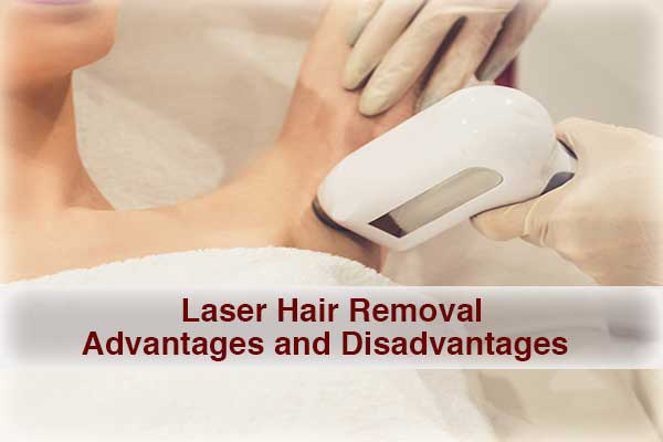 Know Different Advantages and Disadvantages of Laser Hair Removal
