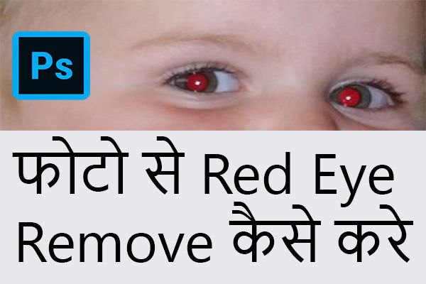red eye problem fix