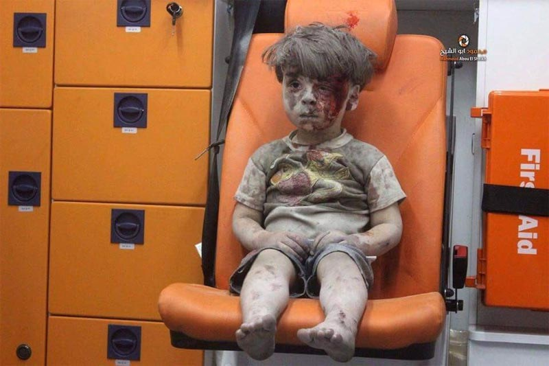 Picture of 5-year-old boy rescued from bombing in Syria goes viral