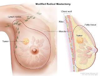 Breast cancer | Symptoms and causes