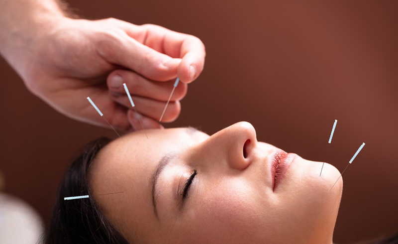 How to Get a Natural Facelift with Acupuncture