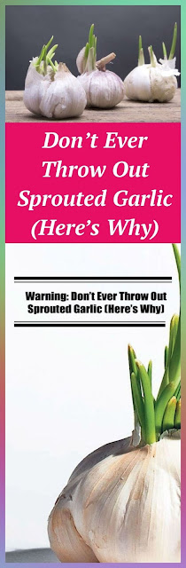 Don't Ever Throw Out Sprouted Garlic (Here's Why)