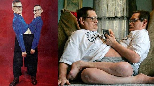 Ronnie dan Donnie Gaylon Catat Rekor Sebagai Kembar Siam Tertua di Dunia, Meninggal di Usia 68 Tahun