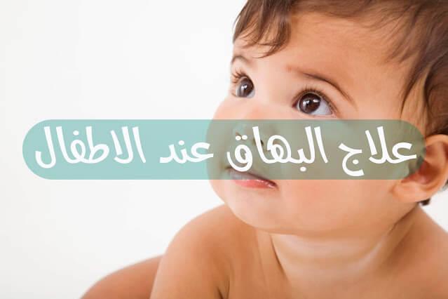 علاج البهاق عند الاطفال