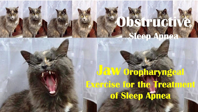 Obstructive Sleep Apnea | Oropharyngeal Exercise for Jaw for the Treatment of Sleep Apnea