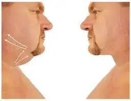 face and neck fat by bodytrick