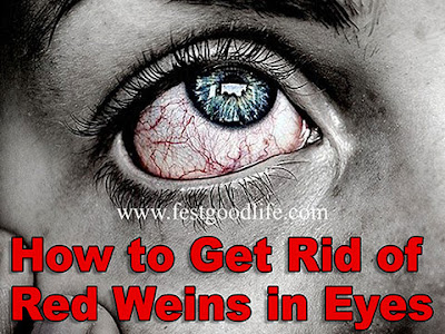 How to Get Rid of Red Weins in Eyes