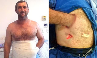 To Save This Man's Hand, They Sewed It Into His Belly