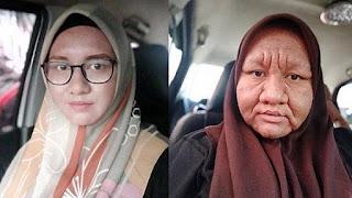 Waajah Berubah Drastis Selama Hamil, Wanita Ini Dinyinyiri Tetangga, Suami Tetap Memuji 'Kamu Cantik'