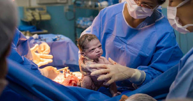 Picture Captures Newborn Baby Glaring at Doctors Immediately After Birth