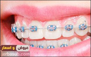 ارخص تقويم اسنان بالرياض