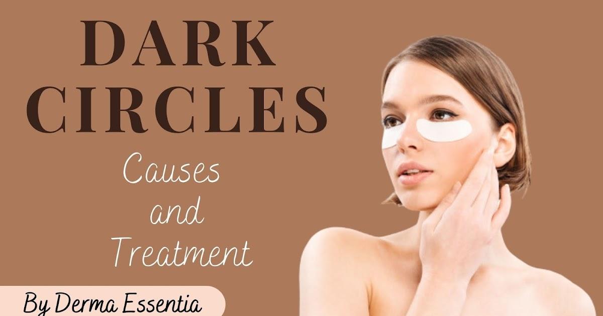 Dark Circles: Causes and Treatment by Derma Essentia